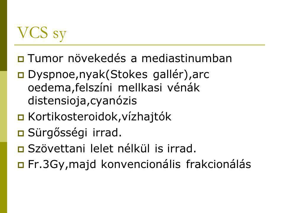 VCS sy Tumor növekedés a mediastinumban