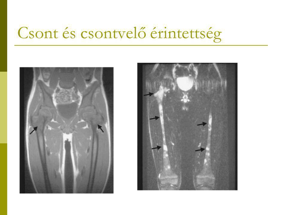 Csont és csontvelő érintettség