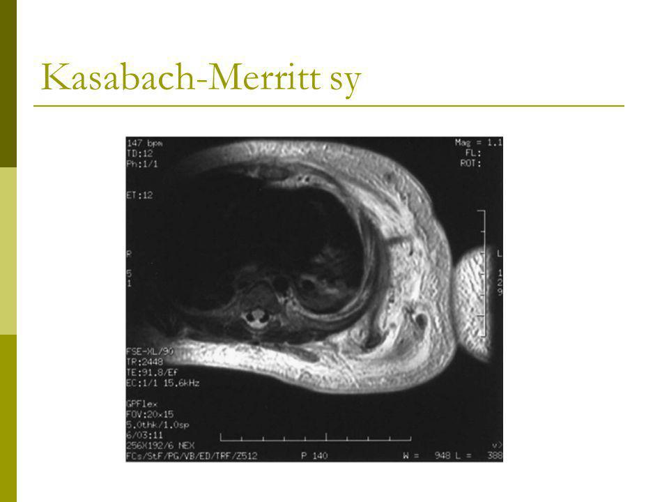 Kasabach-Merritt sy Left hemithorax infiltration and involvement of left arm
