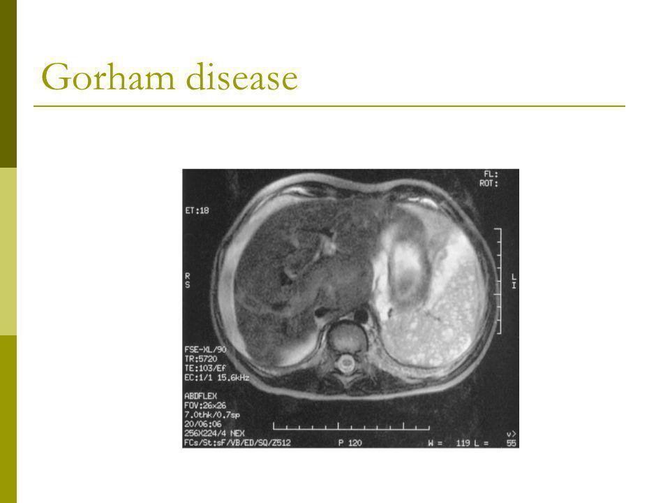 Gorham disease 3y.,diffuse lymphangiomatosis pelvic bones,ribs,spleen,liver