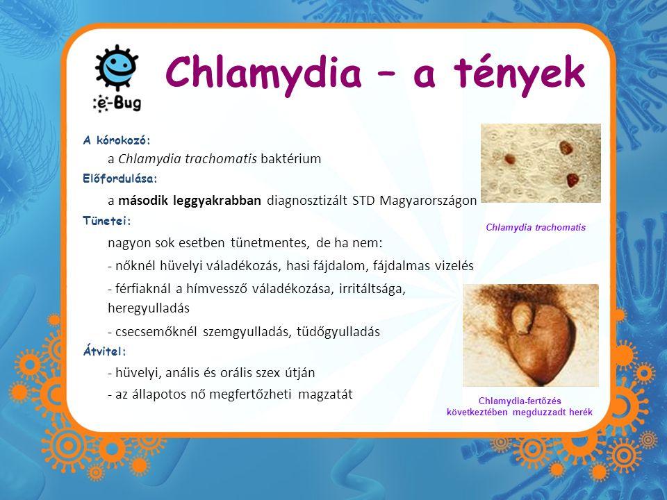 Chlamydia – a tények a Chlamydia trachomatis baktérium