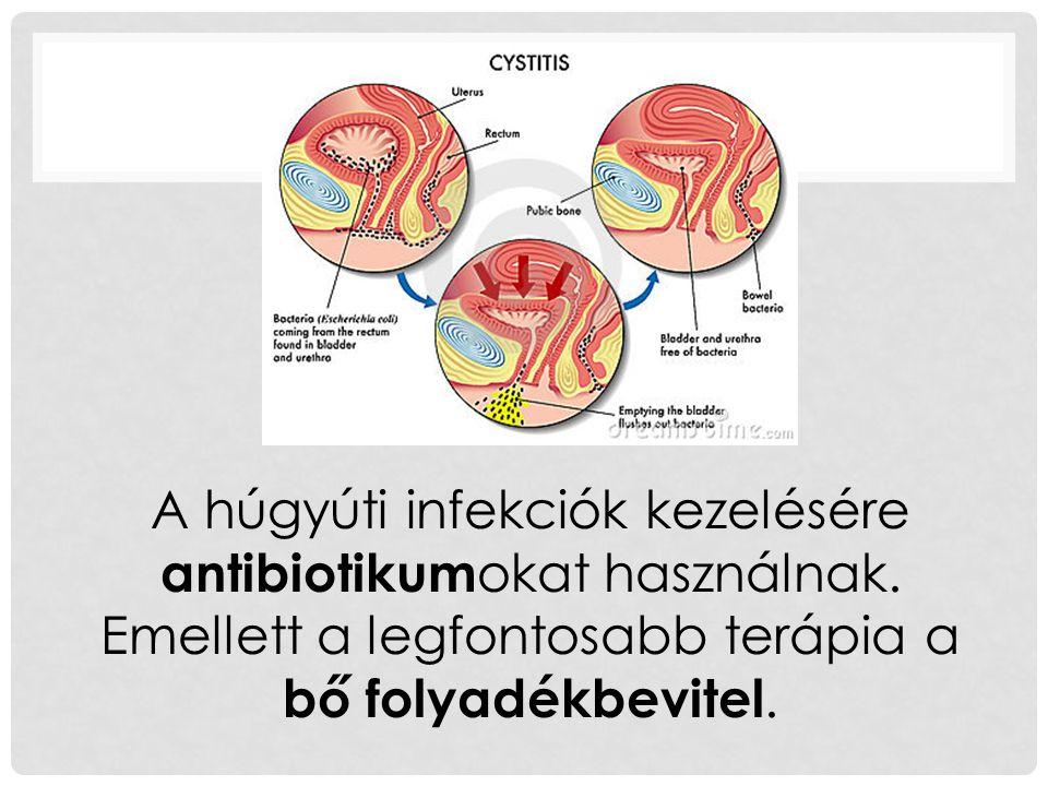 A húgyúti infekciók kezelésére antibiotikumokat használnak