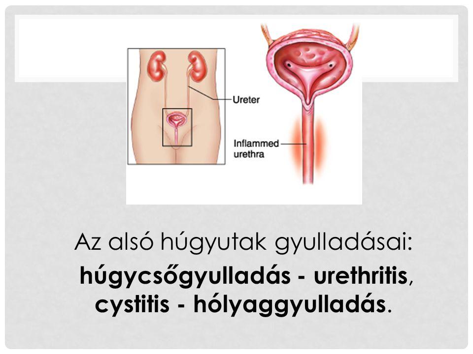 Az alsó húgyutak gyulladásai: húgycsőgyulladás - urethritis, cystitis - hólyaggyulladás.