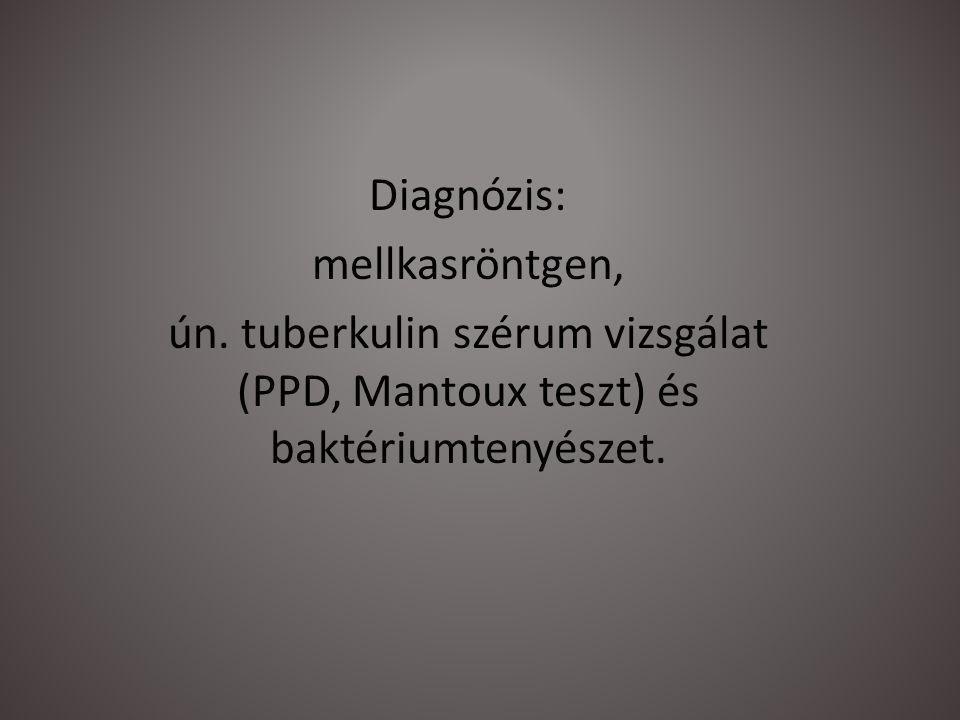 Diagnózis: mellkasröntgen, ún