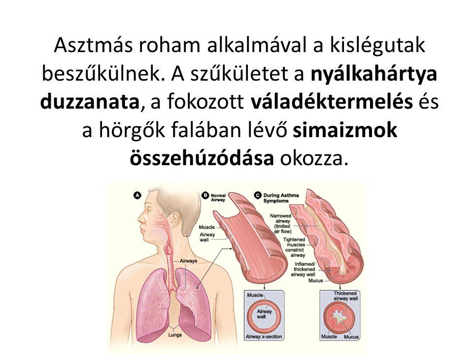 Asztmás roham alkalmával a kislégutak beszűkülnek
