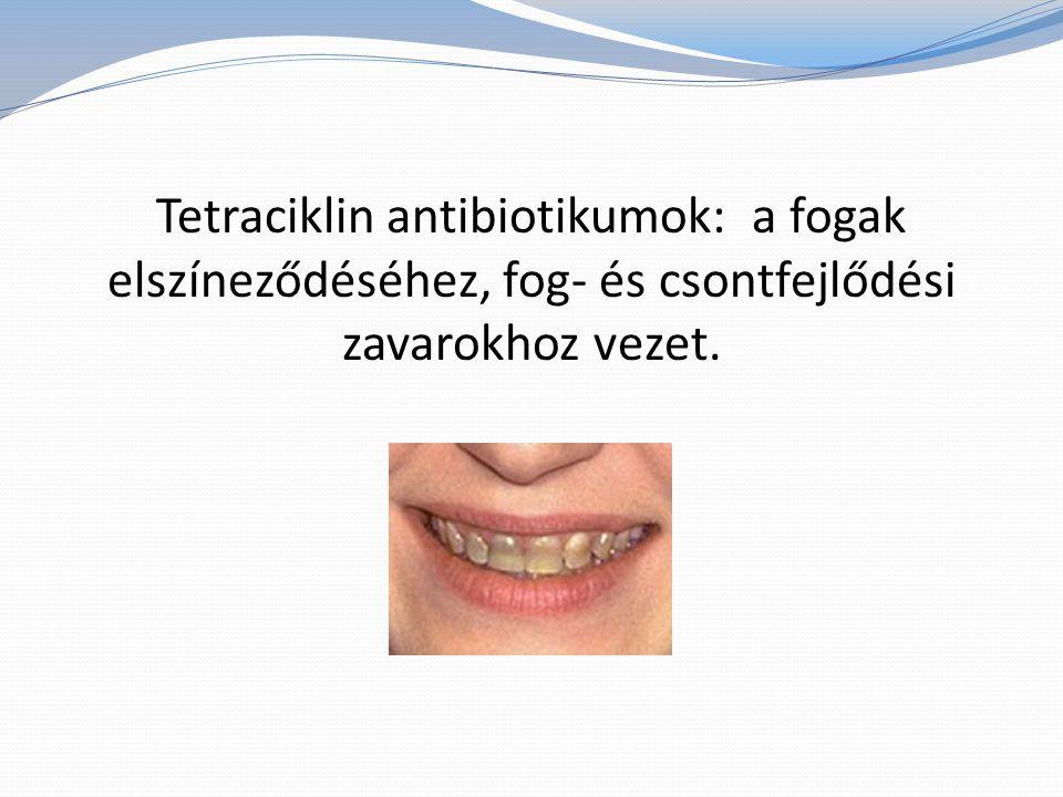 Tetraciklin antibiotikumok: a fogak elszíneződéséhez, fog- és csontfejlődési zavarokhoz vezet.