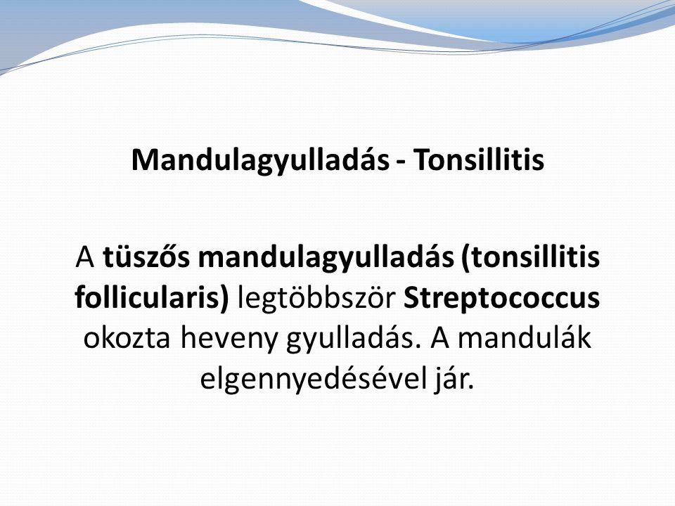 Mandulagyulladás - Tonsillitis A tüszős mandulagyulladás (tonsillitis follicularis) legtöbbször Streptococcus okozta heveny gyulladás.