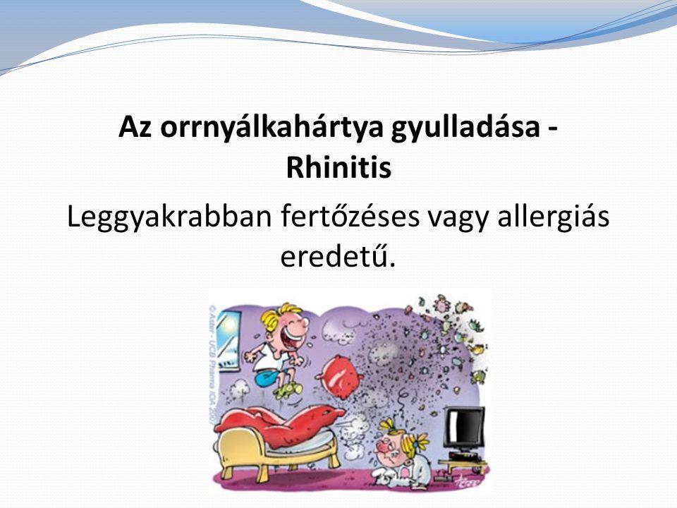 Az orrnyálkahártya gyulladása - Rhinitis Leggyakrabban fertőzéses vagy allergiás eredetű.