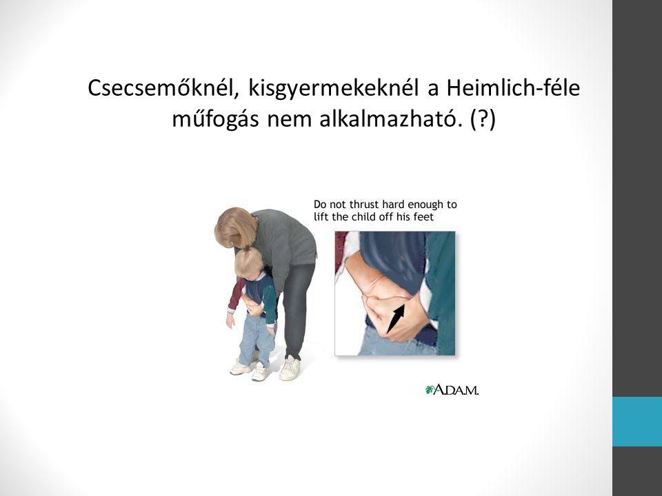 Csecsemőknél, kisgyermekeknél a Heimlich-féle műfogás nem alkalmazható