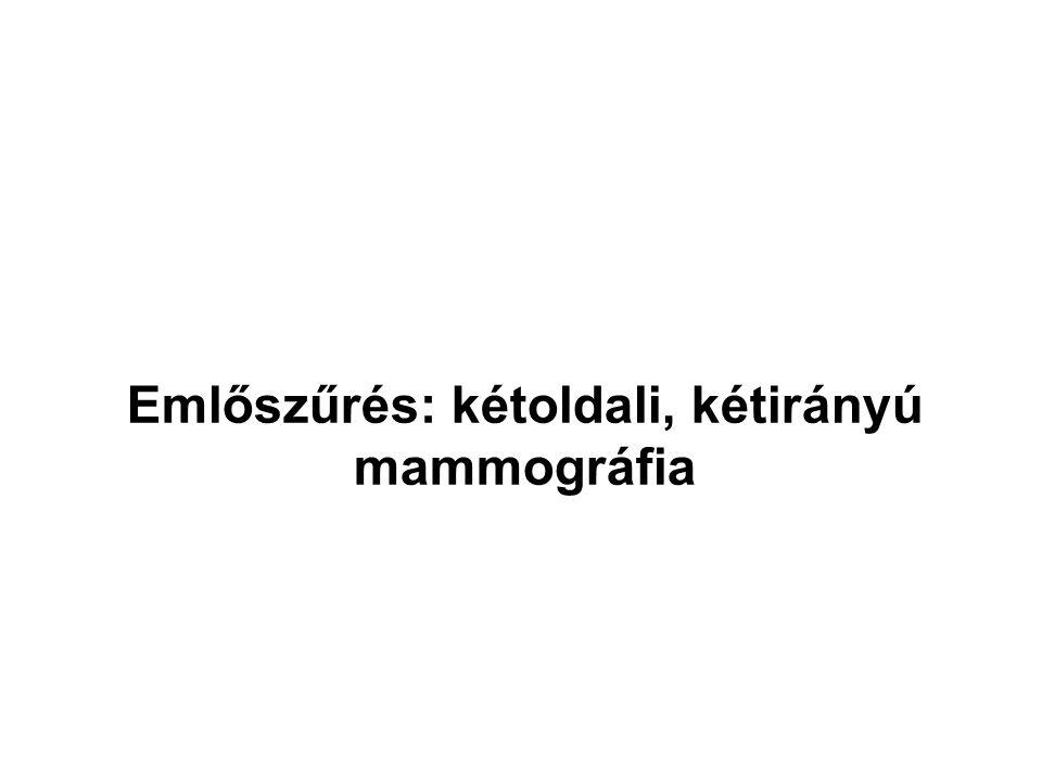 Emlőszűrés: kétoldali, kétirányú mammográfia