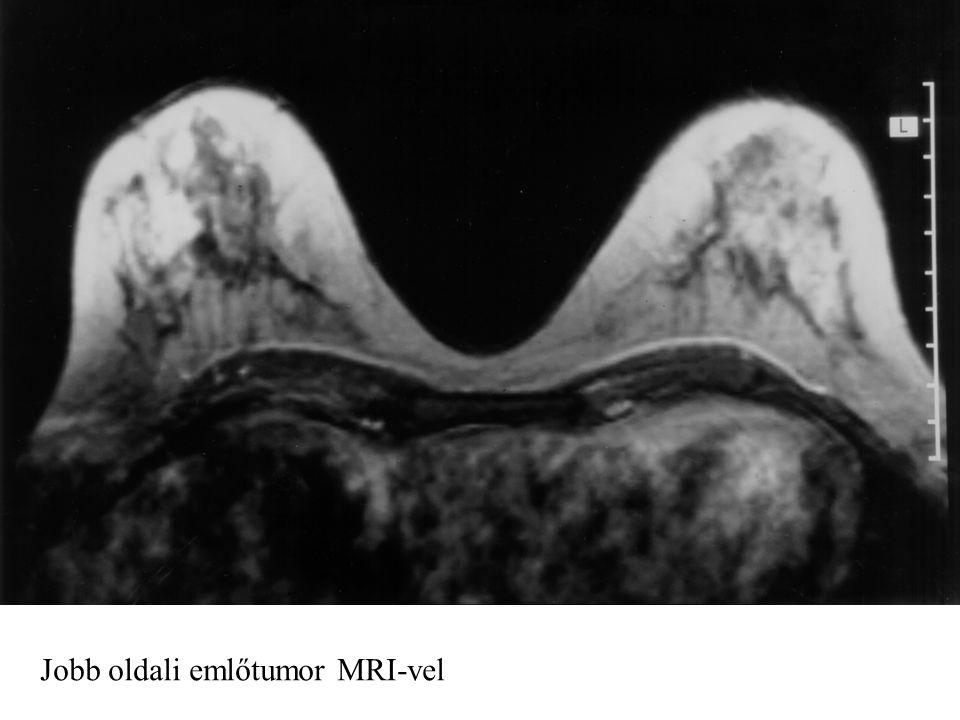 Jobb oldali emlőtumor MRI-vel