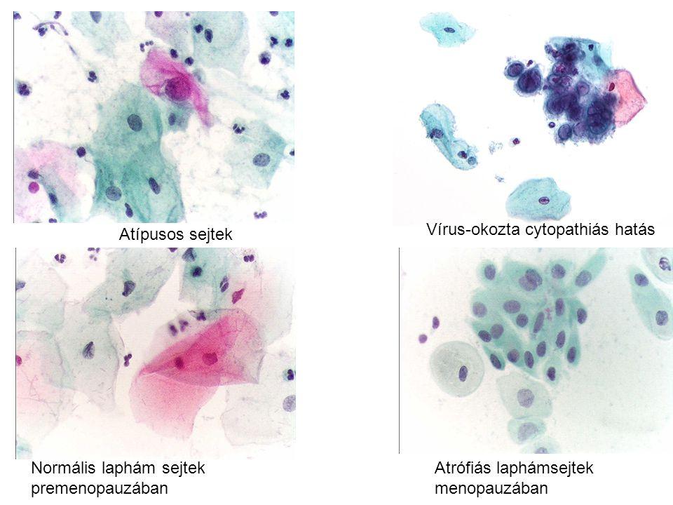 Vírus-okozta cytopathiás hatás