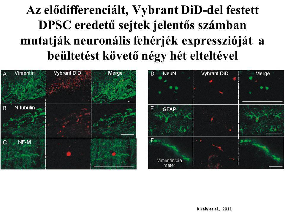 Az elődifferenciált, Vybrant DiD-del festett DPSC eredetű sejtek jelentős számban mutatják neuronális fehérjék expresszióját a beültetést követő négy hét elteltével