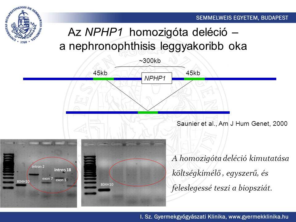 Az NPHP1 homozigóta deléció – a nephronophthisis leggyakoribb oka