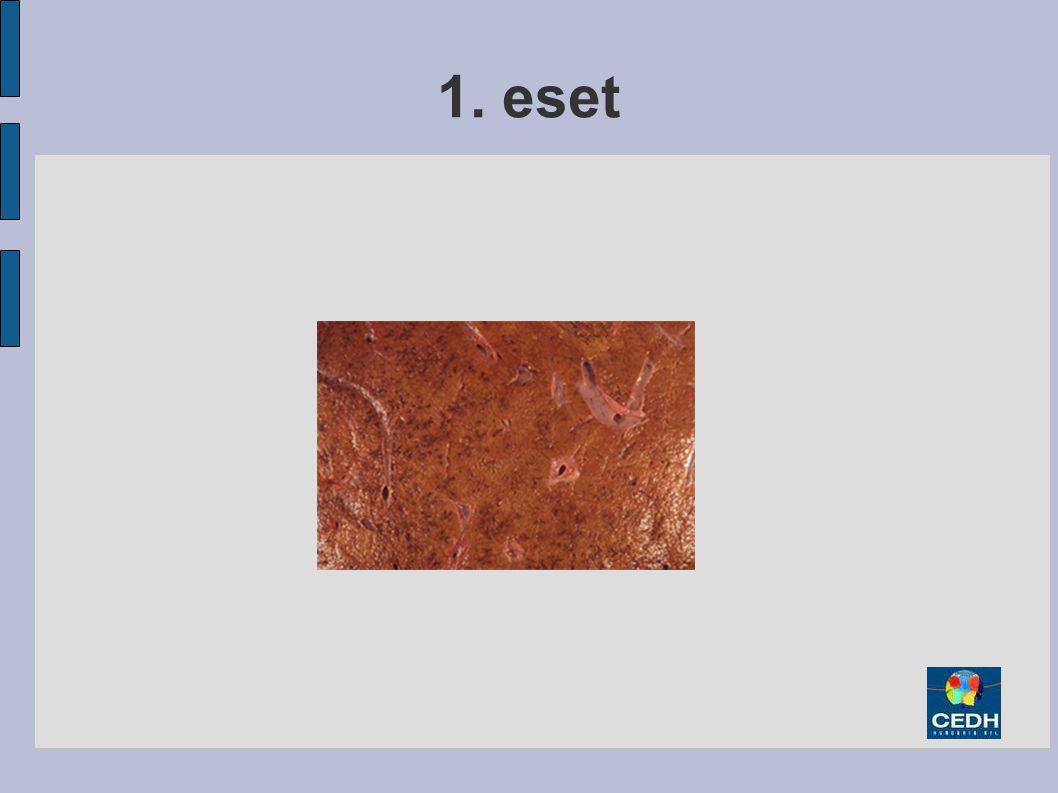 1. eset