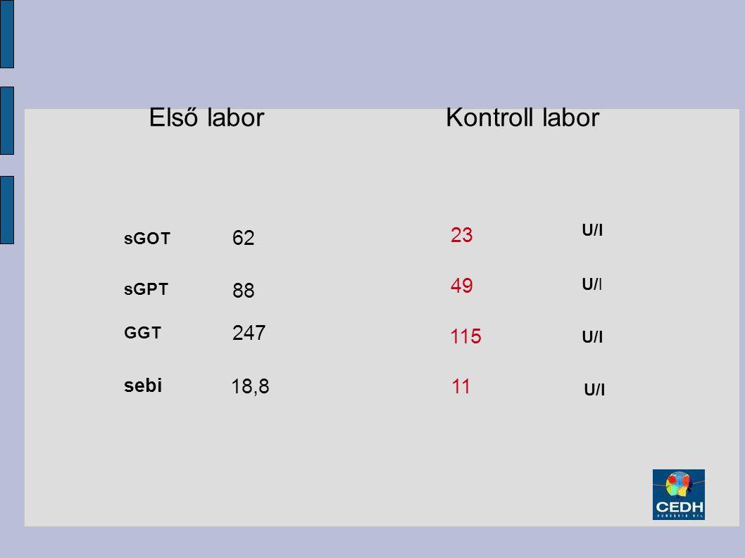 Első labor Kontroll labor 62 23 49 88 247 115 18,8 11 sebi U/l sGOT