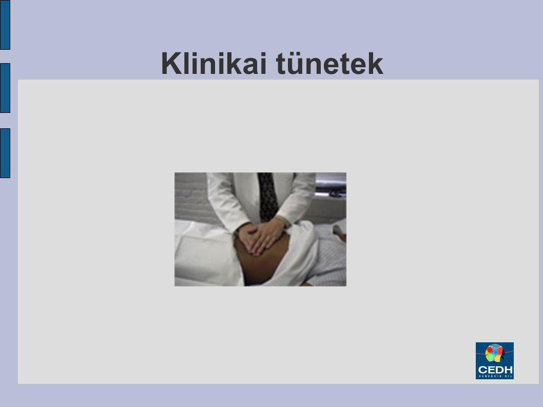 Klinikai tünetek