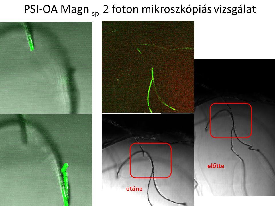 PSI-OA Magn sp 2 foton mikroszkópiás vizsgálat
