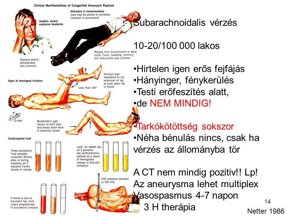 Subarachnoidalis vérzés 10-20/100 000 lakos