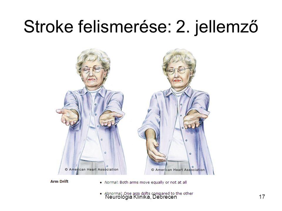 Stroke felismerése: 2. jellemző