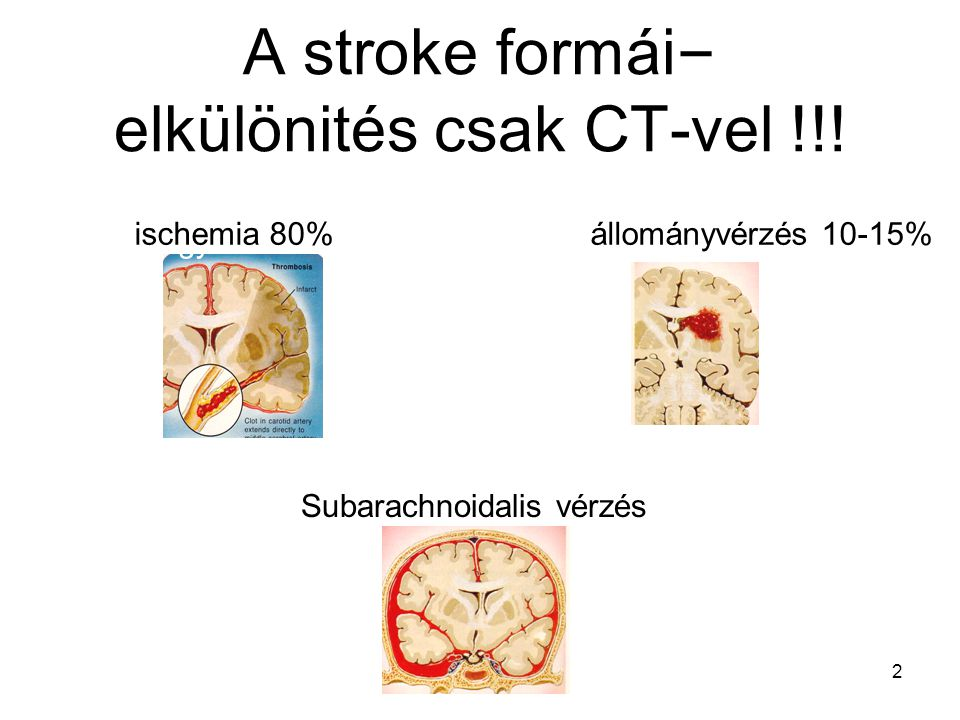 A stroke formái– elkülönités csak CT-vel !!!