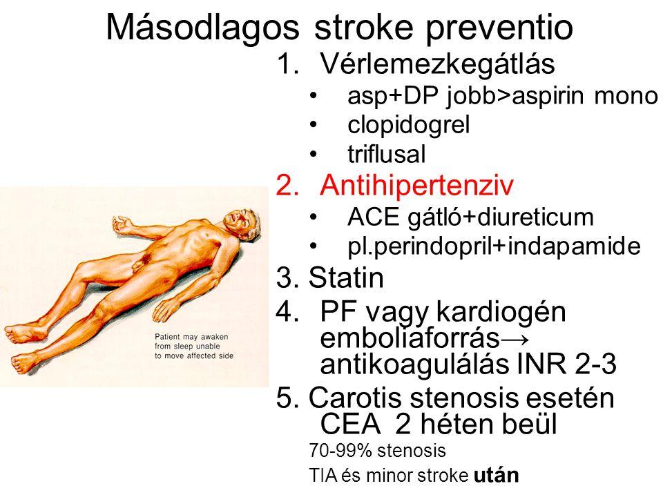 Másodlagos stroke preventio