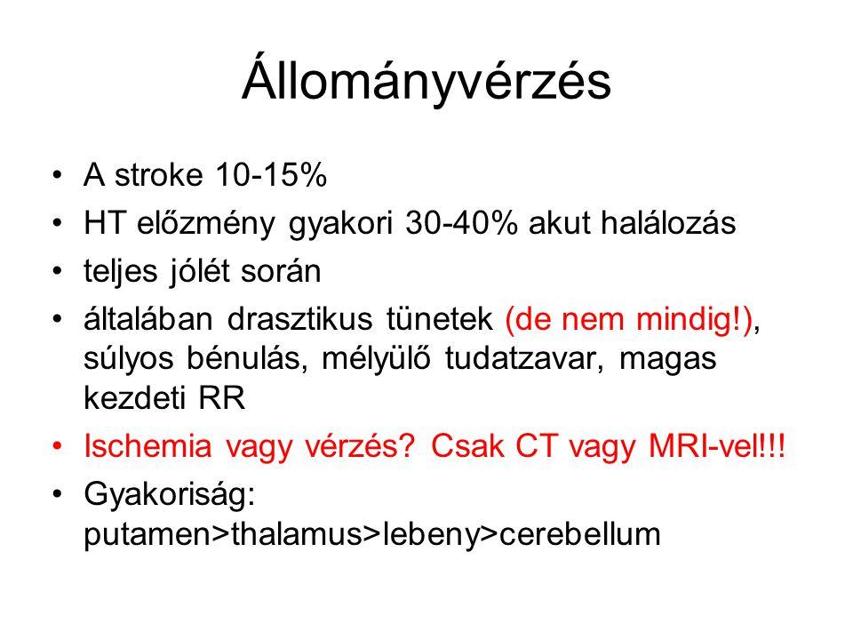 Állományvérzés A stroke 10-15%