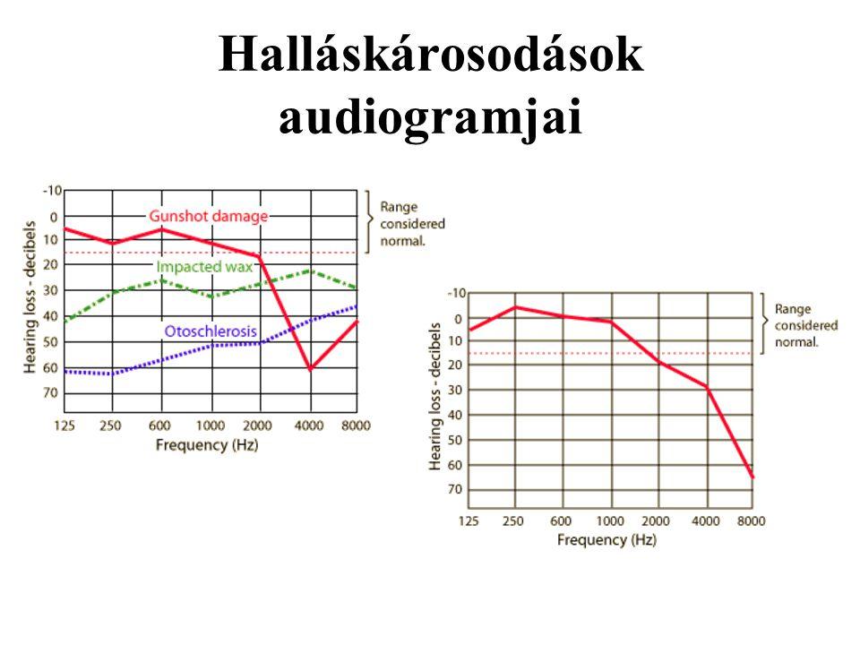 Halláskárosodások audiogramjai