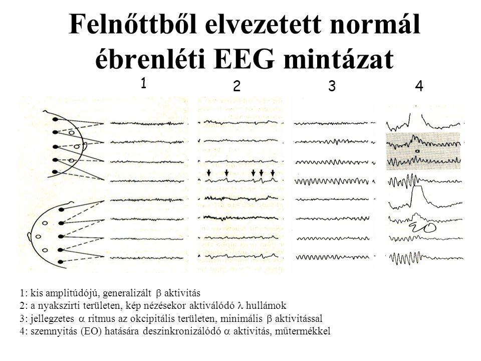 Felnőttből elvezetett normál ébrenléti EEG mintázat