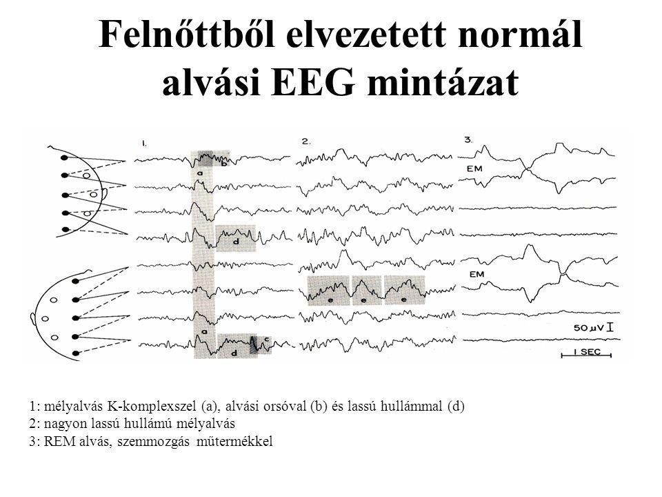 Felnőttből elvezetett normál alvási EEG mintázat