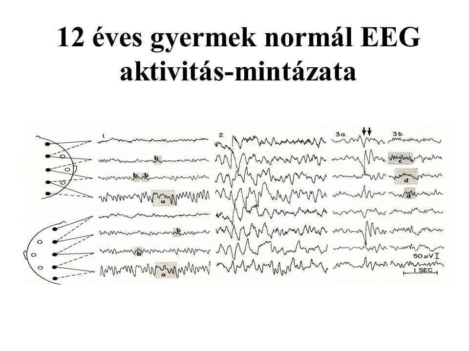 12 éves gyermek normál EEG aktivitás-mintázata