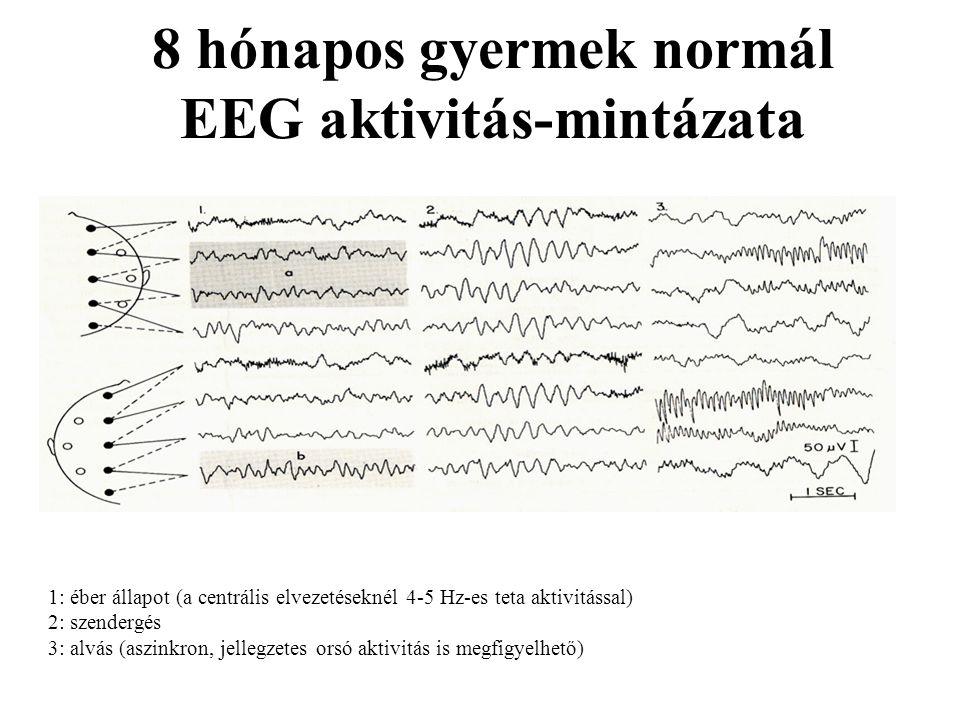 8 hónapos gyermek normál EEG aktivitás-mintázata