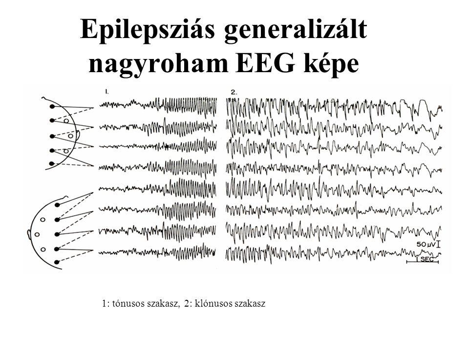 Epilepsziás generalizált nagyroham EEG képe