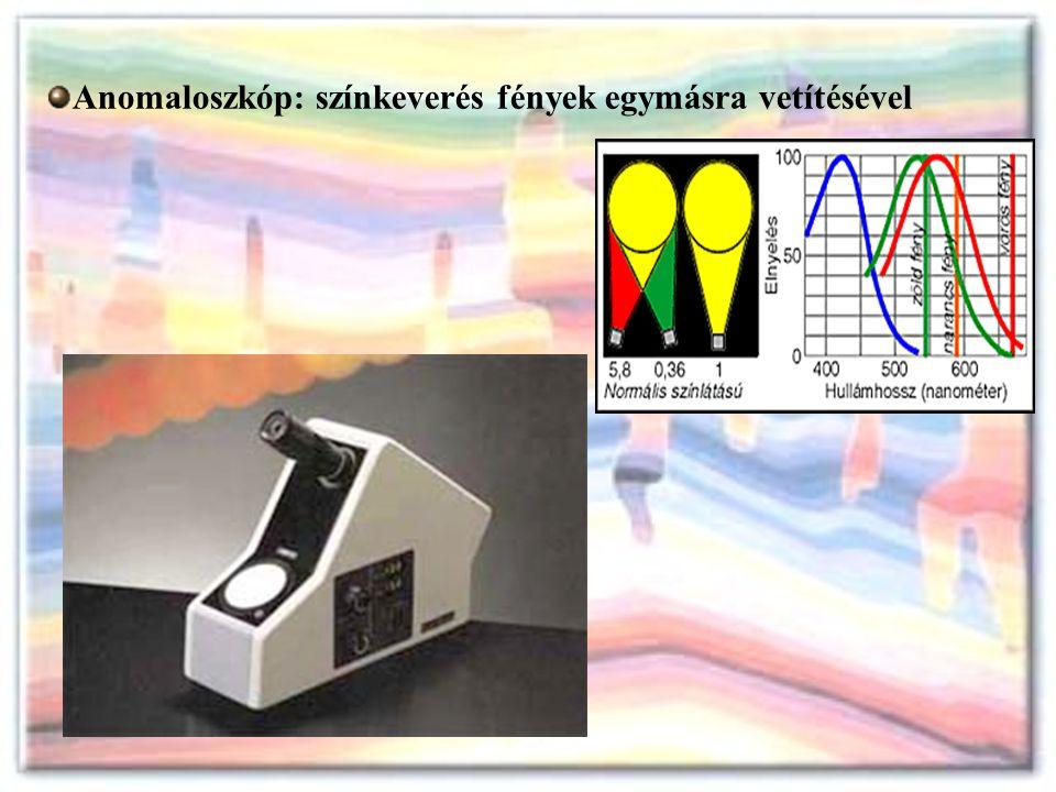 Anomaloszkóp: színkeverés fények egymásra vetítésével