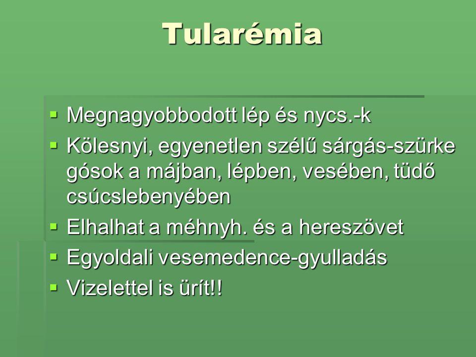Tularémia Megnagyobbodott lép és nycs.-k