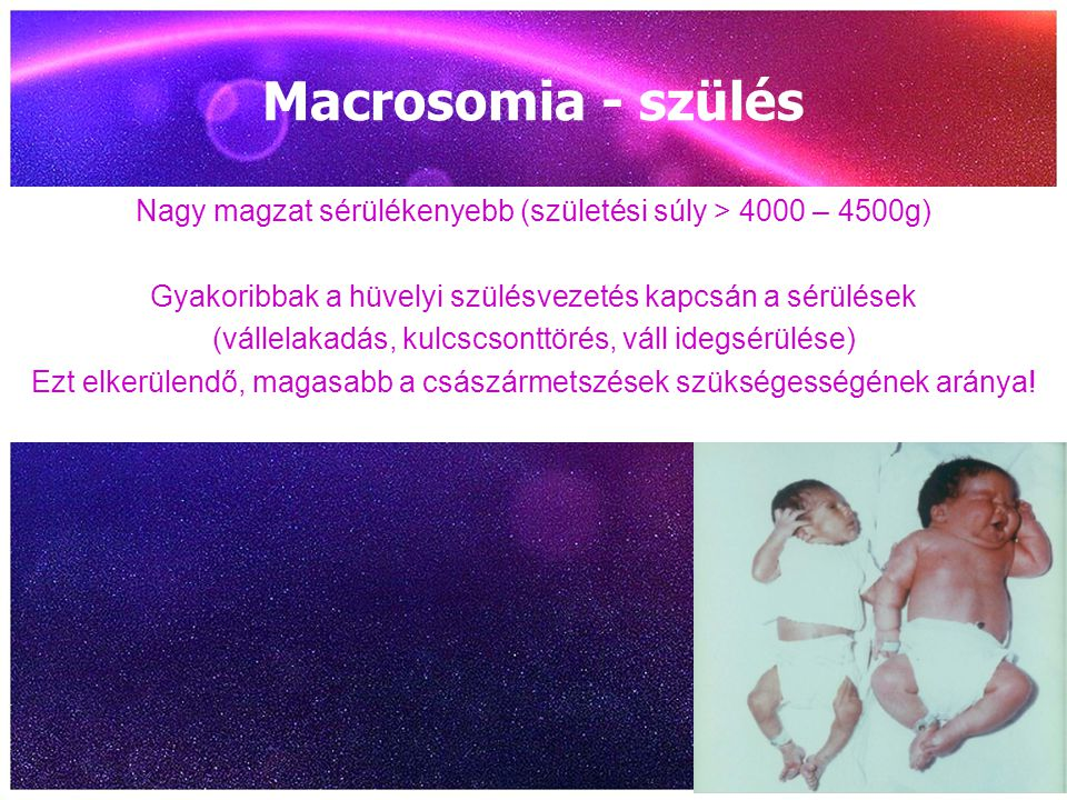 Macrosomia - szülés Nagy magzat sérülékenyebb (születési súly > 4000 – 4500g) Gyakoribbak a hüvelyi szülésvezetés kapcsán a sérülések.
