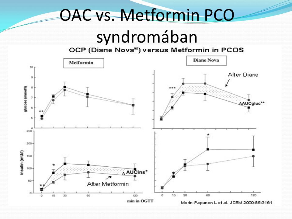 OAC vs. Metformin PCO syndromában