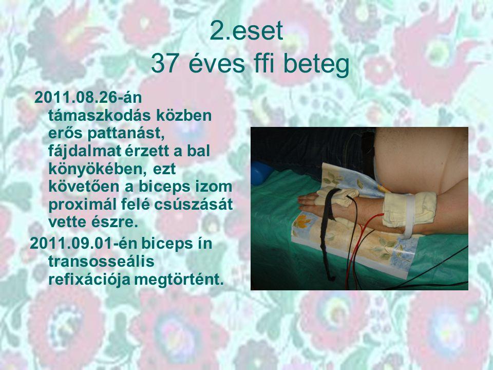 2.eset 37 éves ffi beteg