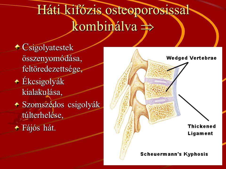 Háti kifózis osteoporosissal kombinálva 