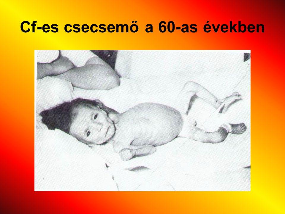 Cf-es csecsemő a 60-as években