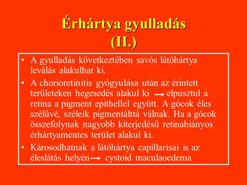 Érhártya gyulladás (II.)