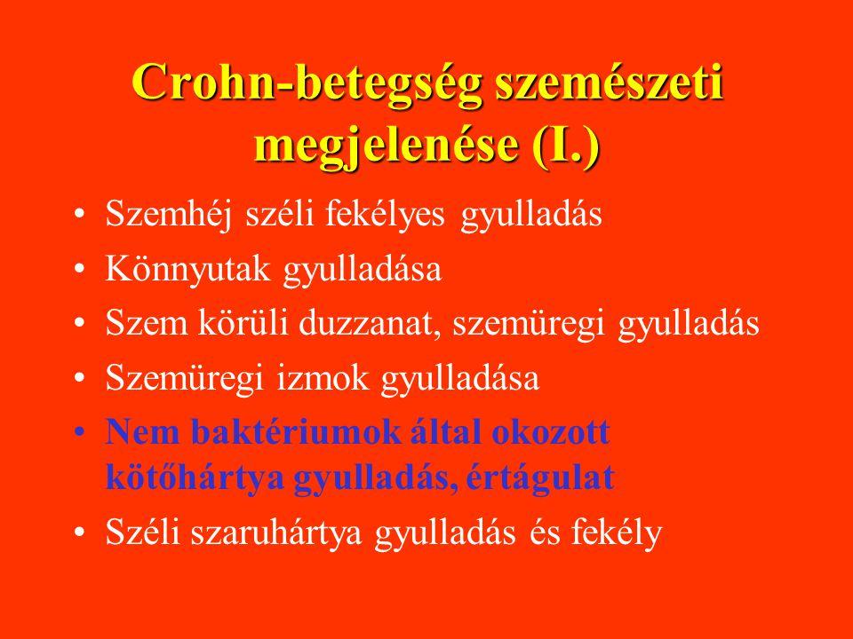 Crohn-betegség szemészeti megjelenése (I.)