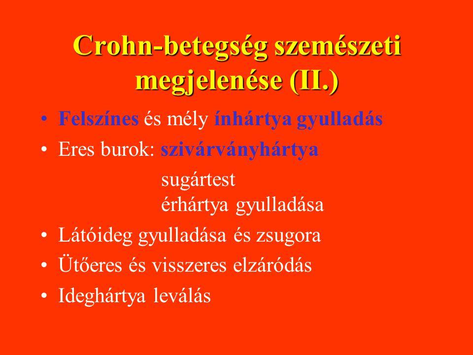 Crohn-betegség szemészeti megjelenése (II.)