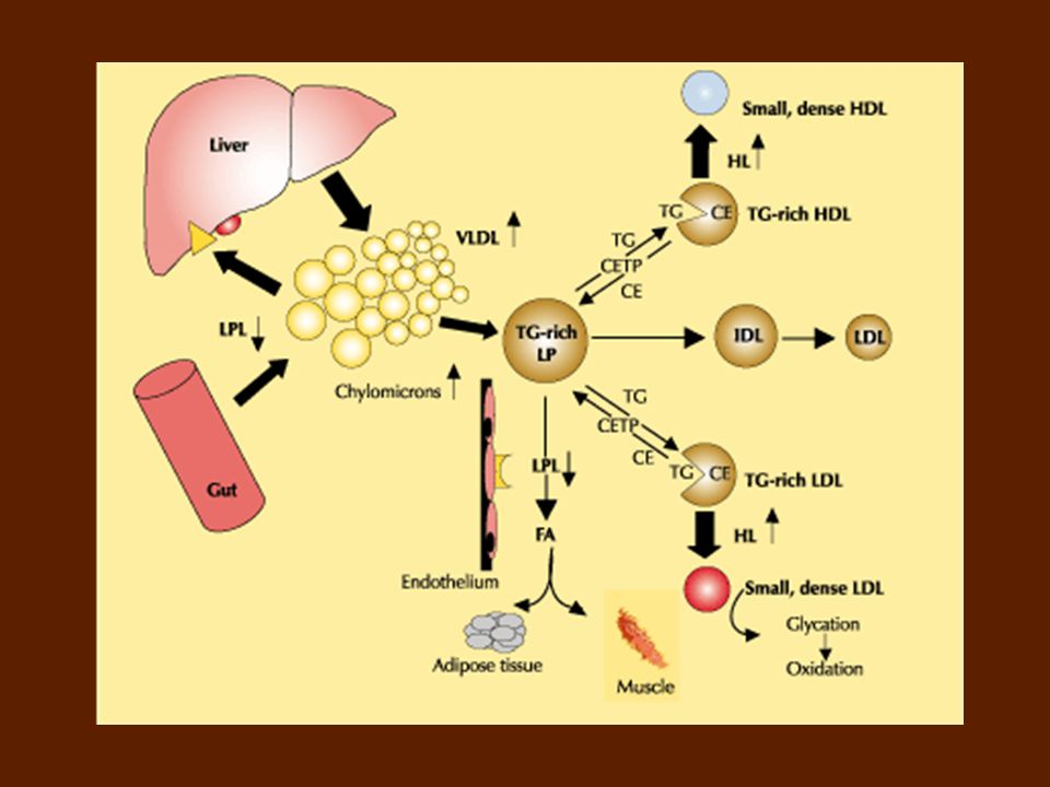 Schematic overview of lipoprotein metabolic pathways in type 2 diabetes.