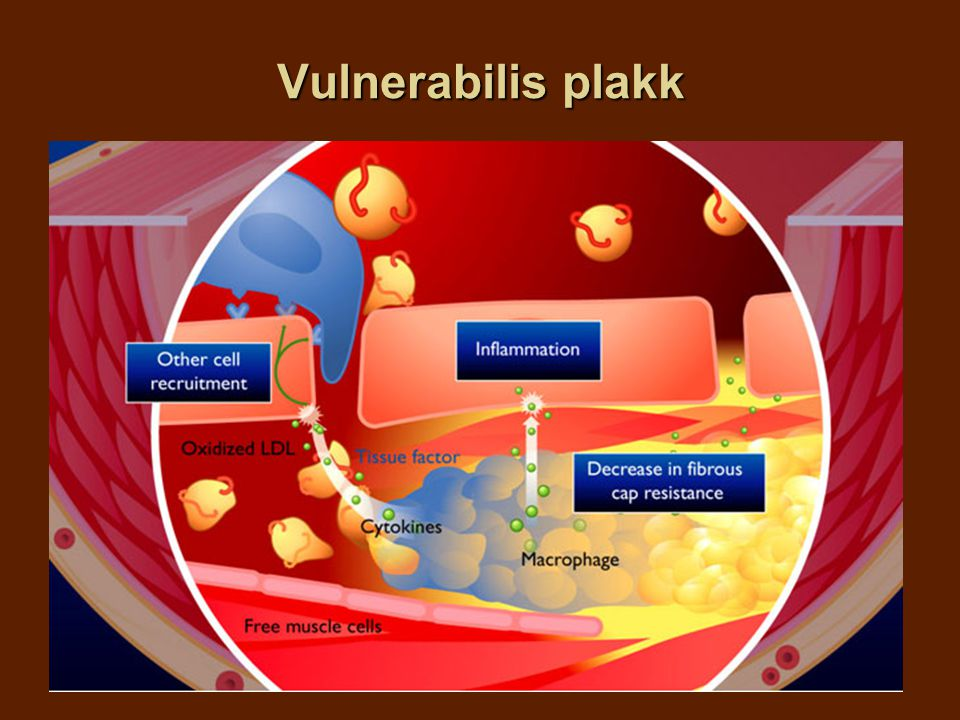 Vulnerabilis plakk Figure 15 Macrophages play a key role in the formation of a vulnerable plaque. This is achieved because they: