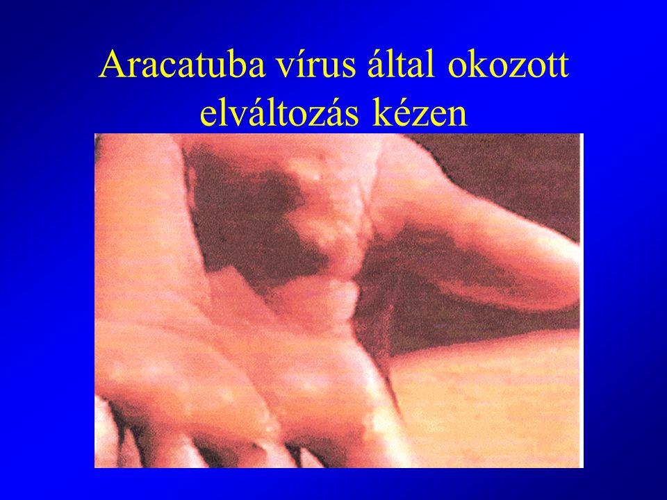 Aracatuba vírus által okozott elváltozás kézen