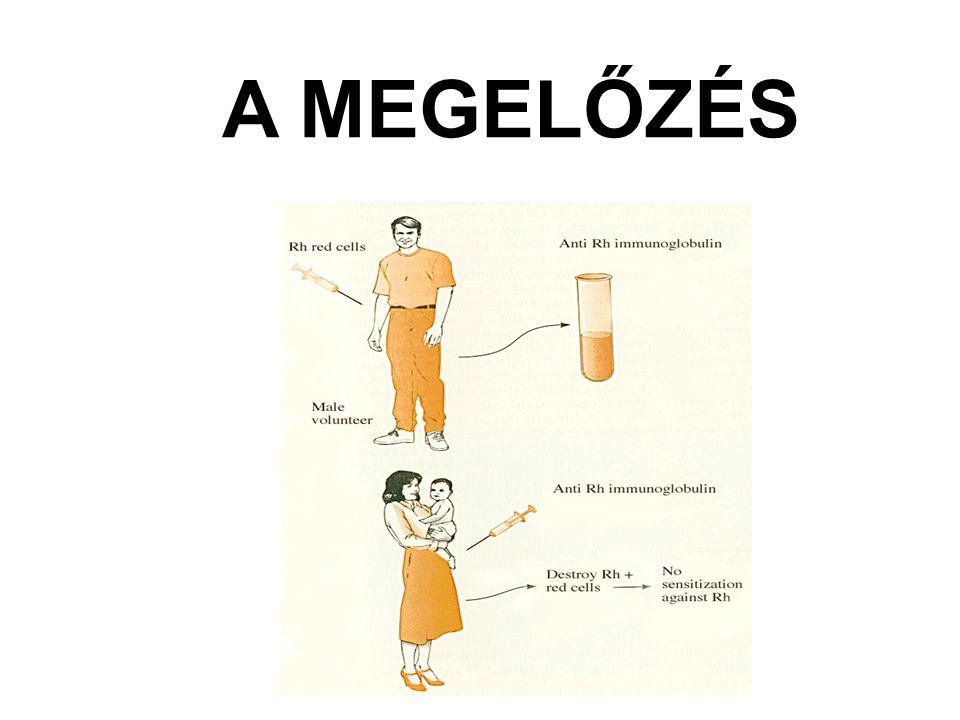 A MEGELŐZÉS