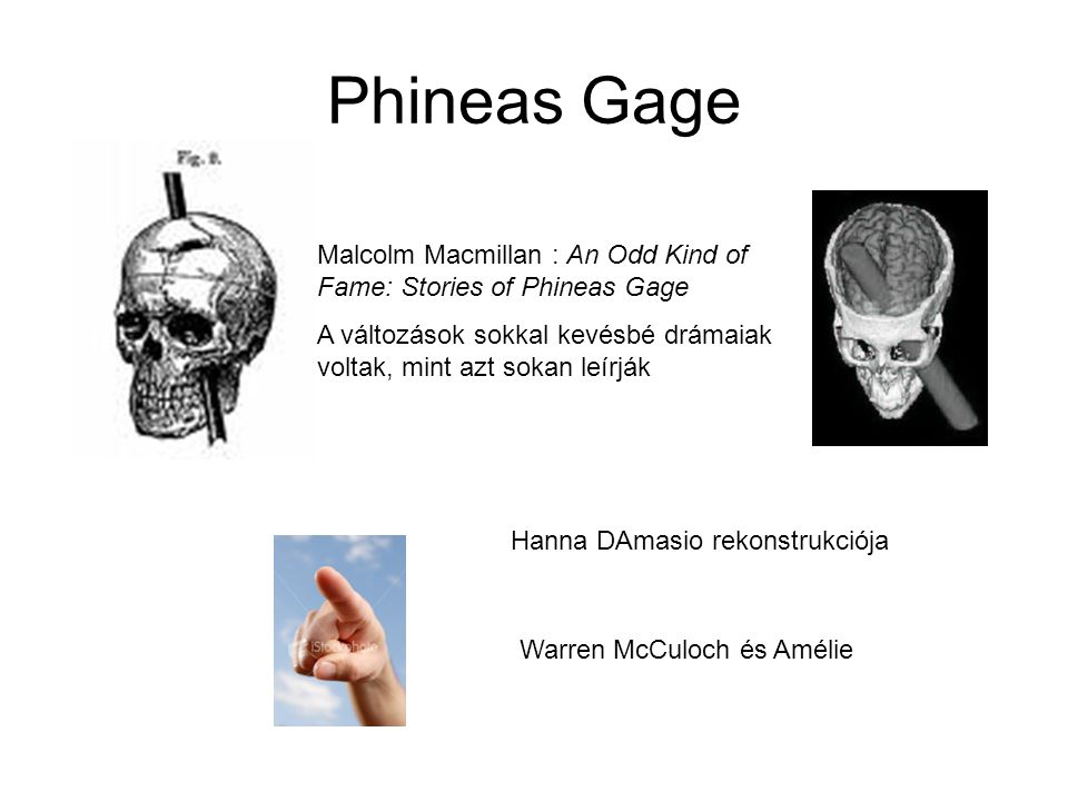 Phineas Gage Malcolm Macmillan : An Odd Kind of Fame: Stories of Phineas Gage. A változások sokkal kevésbé drámaiak voltak, mint azt sokan leírják.