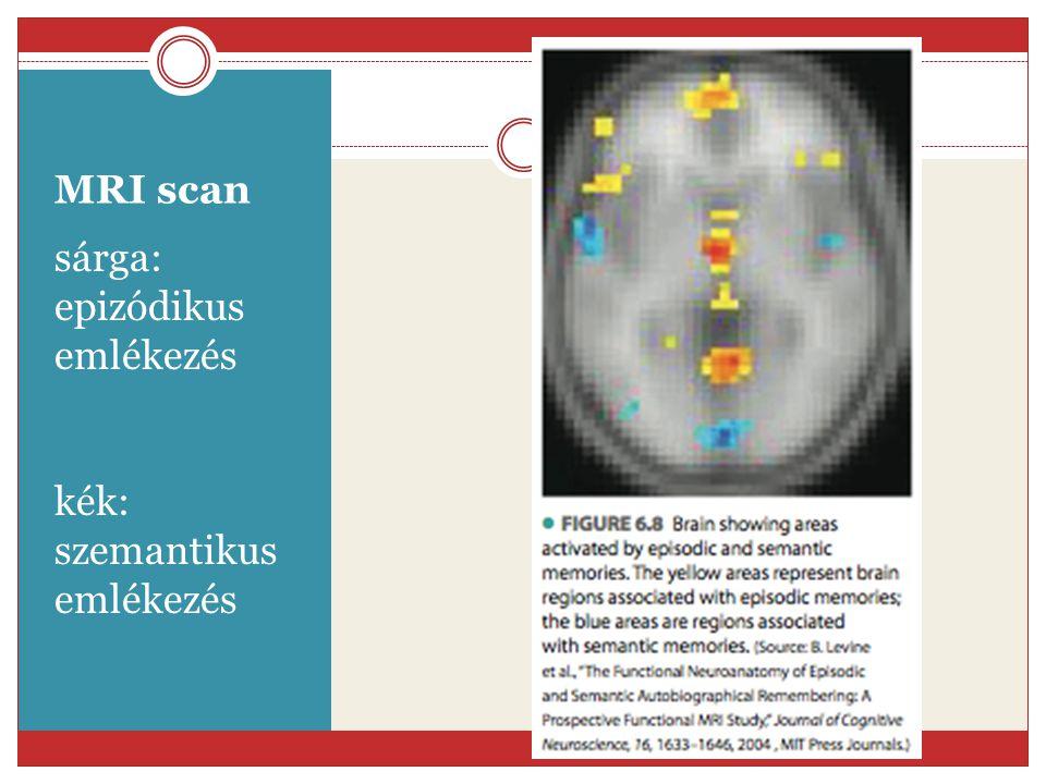 MRI scan sárga: epizódikus emlékezés kék: szemantikus emlékezés