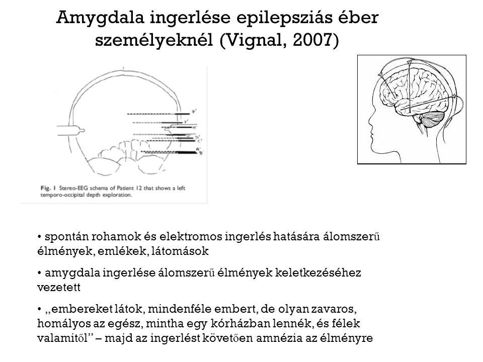 Amygdala ingerlése epilepsziás éber személyeknél (Vignal, 2007)